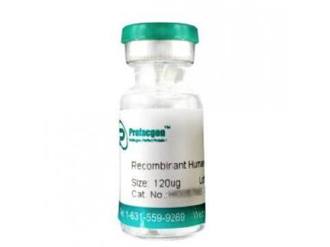 Recombinant Human CTLA4 Protein (His tag) (HI0027CS)